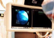 Ecografia prenatala (ultrasonografia)