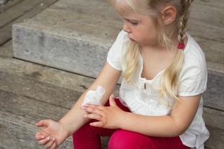 Urticaria la copii: cum o prevenim si cand mergem la medic?