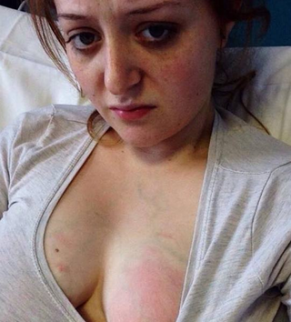 Experienta dureroasa a unei mame in alaptare