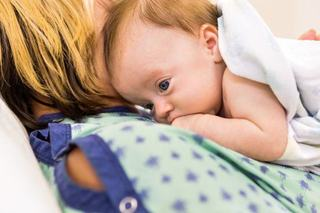 Anomaliile congenitale la nastere
