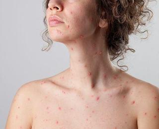 Cum afecteaza varicela sanatatea viitoarei mame?