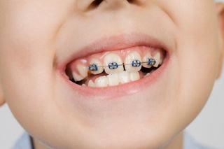 Activarea aparatului dentar