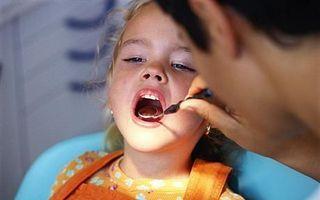 Sigilarea dintilor pentru prevenirea cariilor la copii
