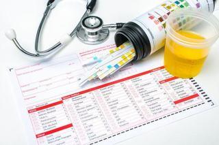 Testul de urina in sarcina
