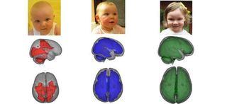 STUDIU Cum creste creierul copilului alaptat