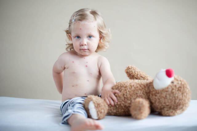 Ce este de facut dupa contactul cu un copil care este apoi diagnosticat cu varicela?