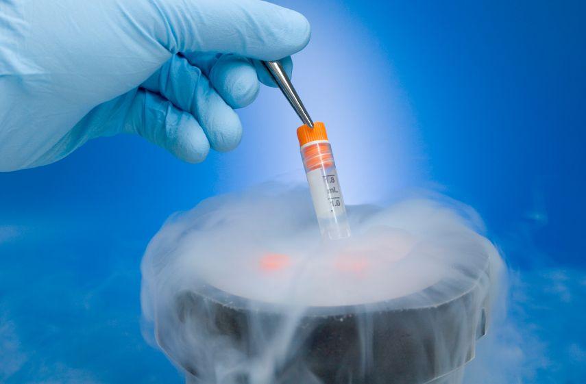 Crioconservarea spermei