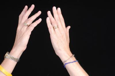 Ce spun mainile tale despre starea de sanatate